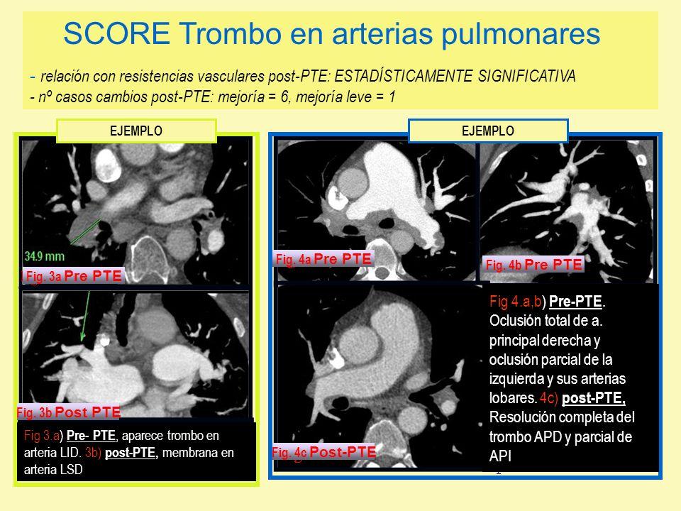 Fig 3.a) Pre- PTE, aparece trombo en arteria LID. 3b) post-PTE, membrana en arteria LSD Fig 4.a,b) Pre-PTE. Oclusión total de a. principal derecha y o