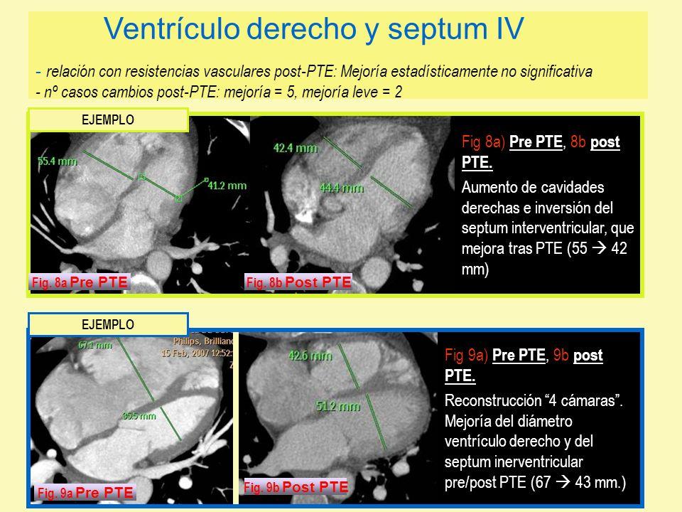 Fig 8a) Pre PTE, 8b post PTE. Aumento de cavidades derechas e inversión del septum interventricular, que mejora tras PTE (55 42 mm) Fig 9a) Pre PTE, 9