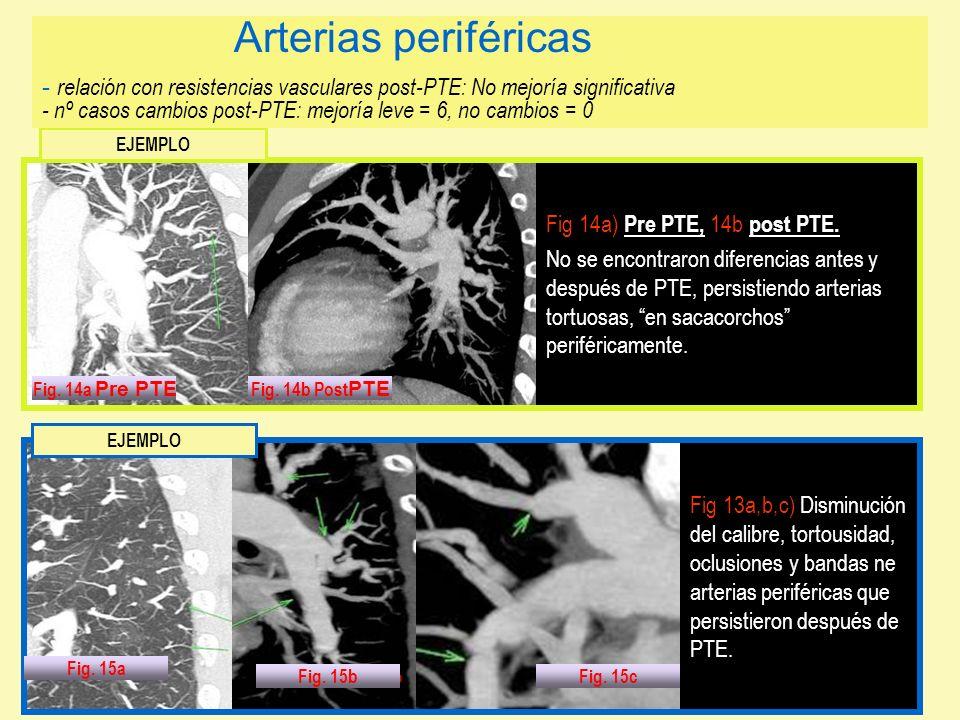 Fig 14a) Pre PTE, 14b post PTE. No se encontraron diferencias antes y después de PTE, persistiendo arterias tortuosas, en sacacorchos periféricamente.