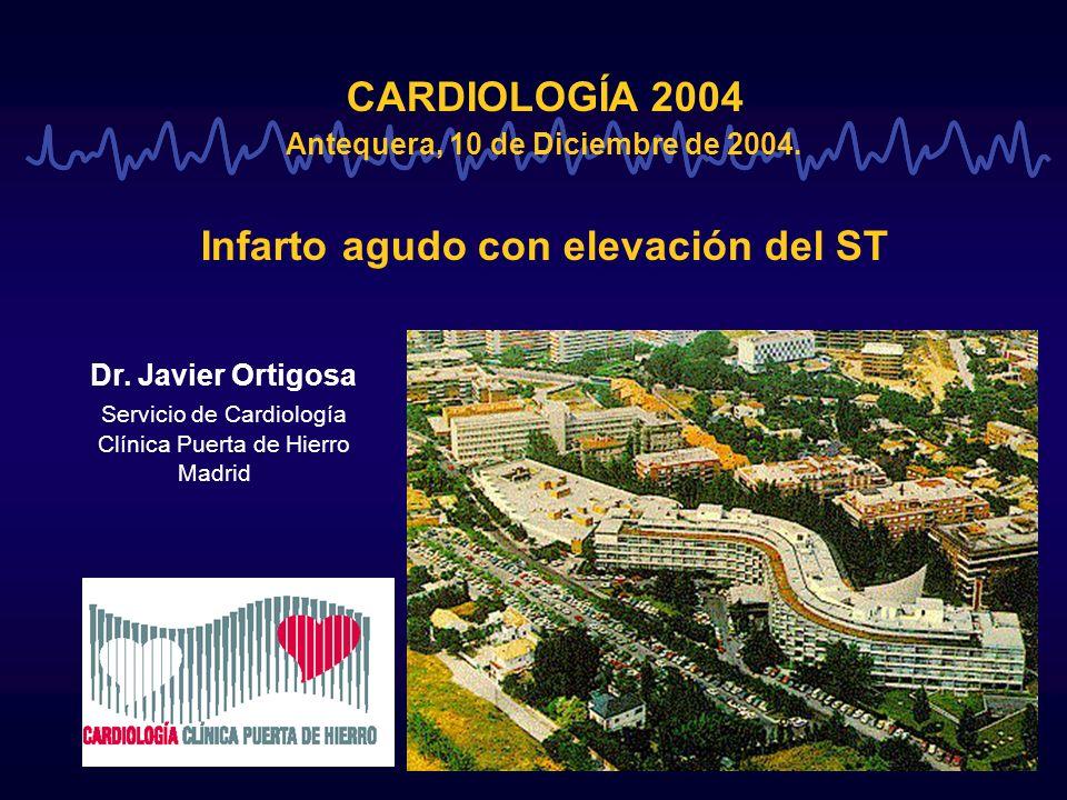 CARDIOLOGÍA 2004 Antequera, 10 de Diciembre de 2004. Infarto agudo con elevación del ST Dr. Javier Ortigosa Servicio de Cardiología Clínica Puerta de