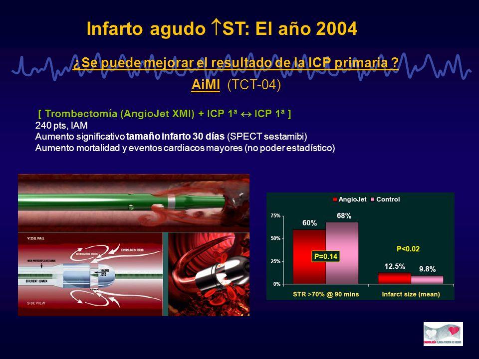 Infarto agudo ST: El año 2004 ¿Se puede mejorar el resultado de la ICP primaria ? AiMI (TCT-04) [ Trombectomía (AngioJet XMI) + ICP 1ª ICP 1ª ] 240 pt