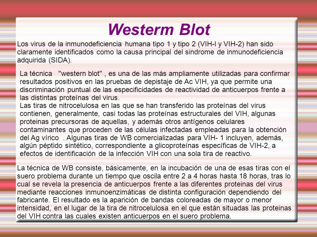 Westerm Blot Los virus de la inmunodeficiencia humana tipo 1 y tipo 2 (VIH-l y VIH-2) han sido claramente identificados como la causa principal del sindrome de inmunodeficiencia adquirida (SIDA).