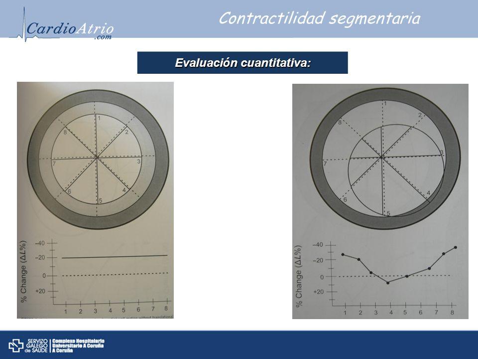 Contractilidad segmentaria Evaluaci ó n cuantitativa: