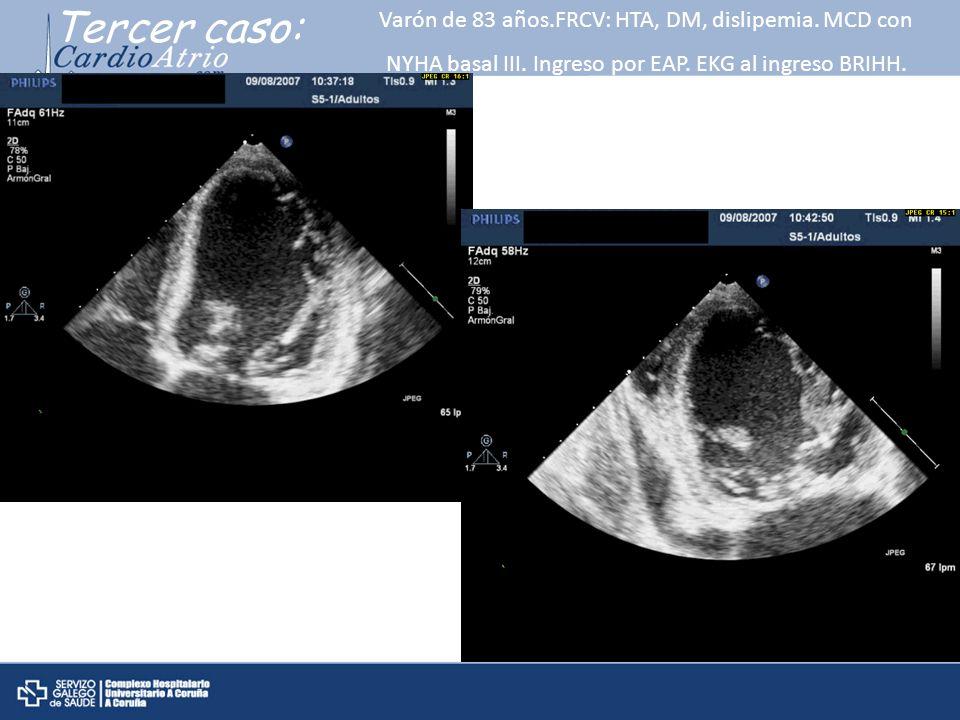 Tercer caso: Varón de 83 años.FRCV: HTA, DM, dislipemia.