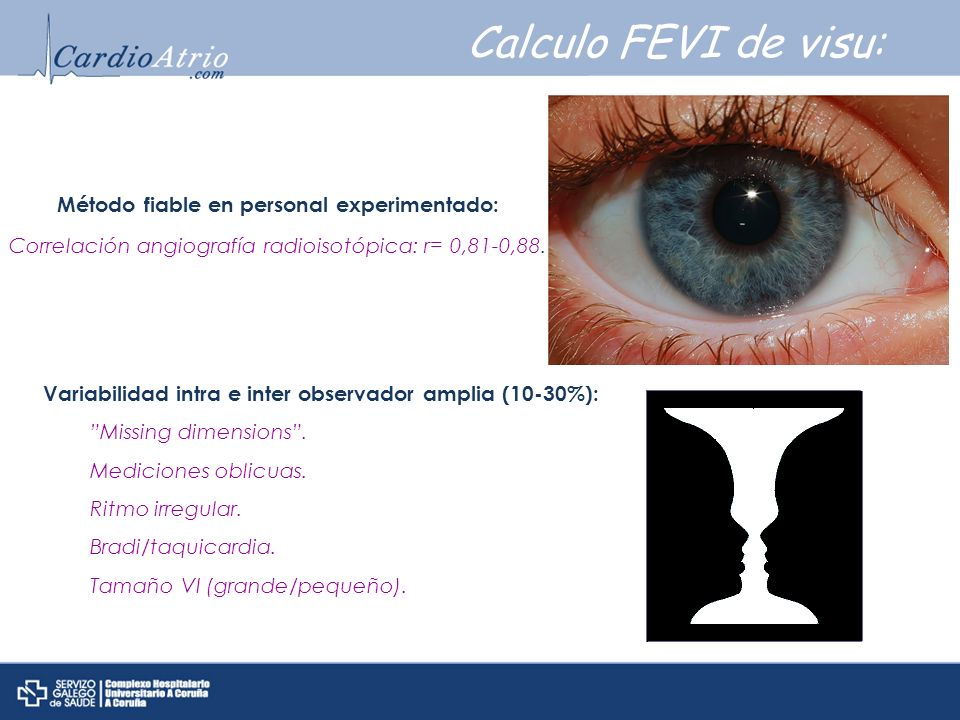 Calculo FEVI de visu: Método fiable en personal experimentado: Correlación angiografía radioisotópica: r= 0,81-0,88.