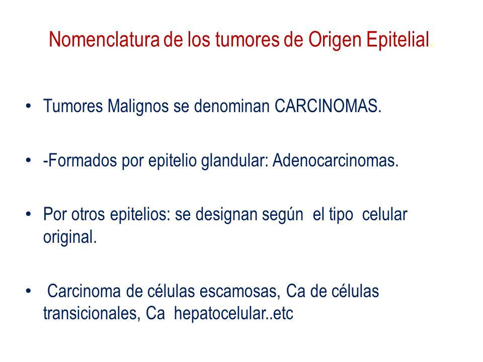 Nomenclatura de los tumores de Origen Epitelial. Tumores Malignos se denominan CARCINOMAS. -Formados por epitelio glandular: Adenocarcinomas. Por otro