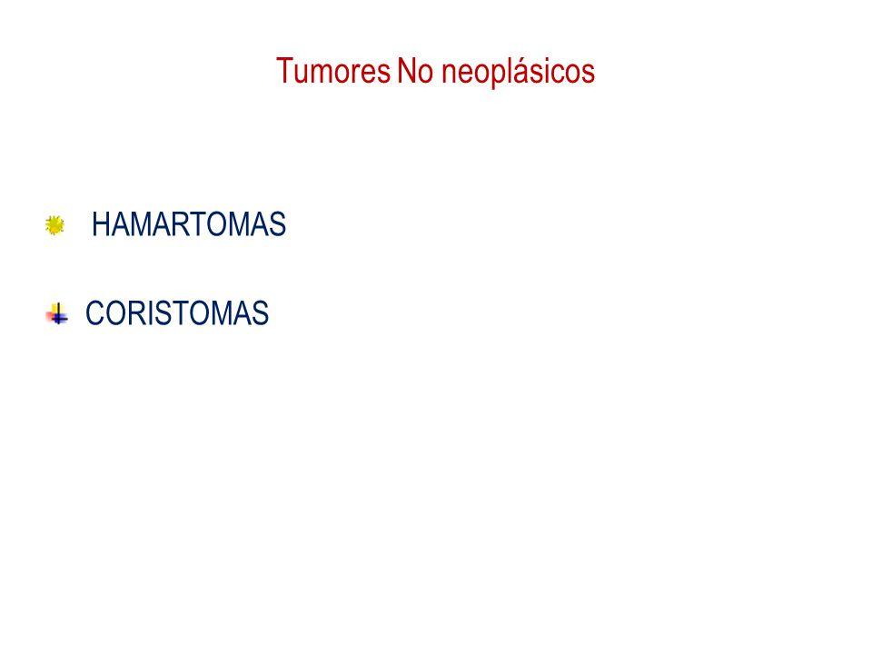 Tumores No neoplásicos HAMARTOMAS CORISTOMAS