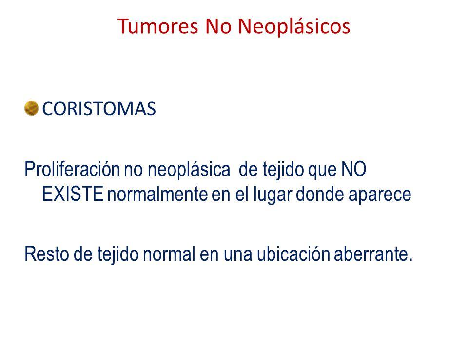 Tumores No Neoplásicos CORISTOMAS Proliferación no neoplásica de tejido que NO EXISTE normalmente en el lugar donde aparece Resto de tejido normal en