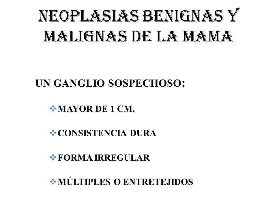 NEOPLASIAS BENIGNAS Y MALIGNAS DE LA MAMA UN GANGLIO SOSPECHOSO : MAYOR DE 1 CM. CONSISTENCIA DURA FORMA IRREGULAR MÚLTIPLES O ENTRETEJIDOS