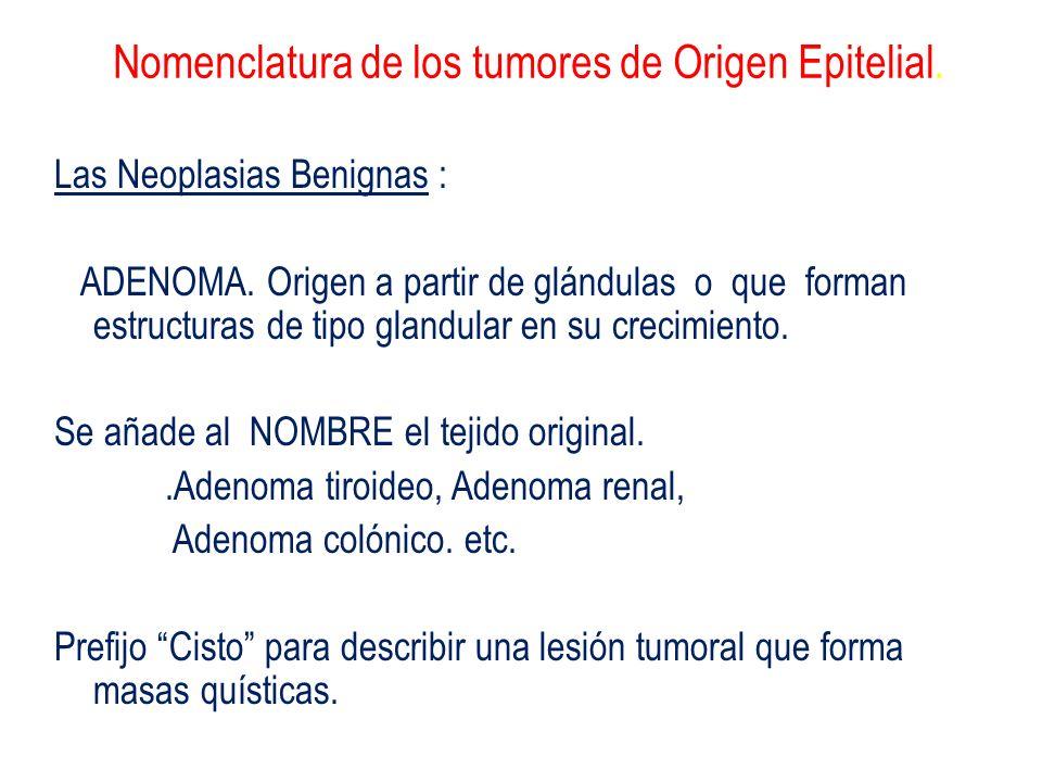 Nomenclatura de los tumores de Origen Epitelial. Las Neoplasias Benignas : ADENOMA. Origen a partir de glándulas o que forman estructuras de tipo glan