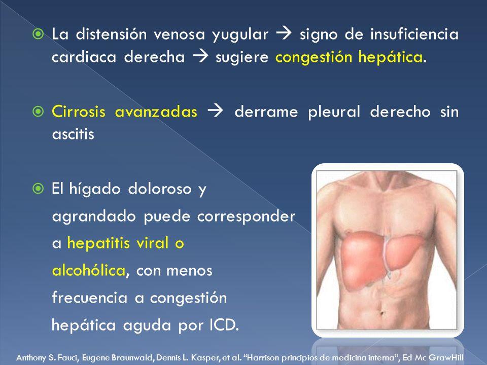 La distensión venosa yugular signo de insuficiencia cardiaca derecha sugiere congestión hepática. Cirrosis avanzadas derrame pleural derecho sin ascit