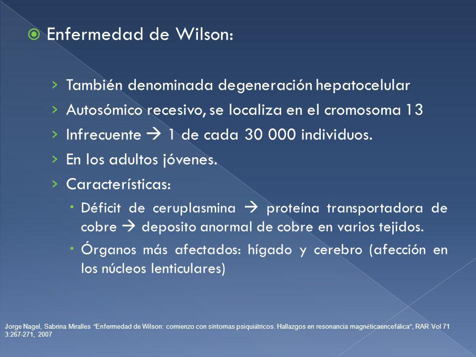 Enfermedad de Wilson: También denominada degeneración hepatocelular Autosómico recesivo, se localiza en el cromosoma 13 Infrecuente 1 de cada 30 000 i