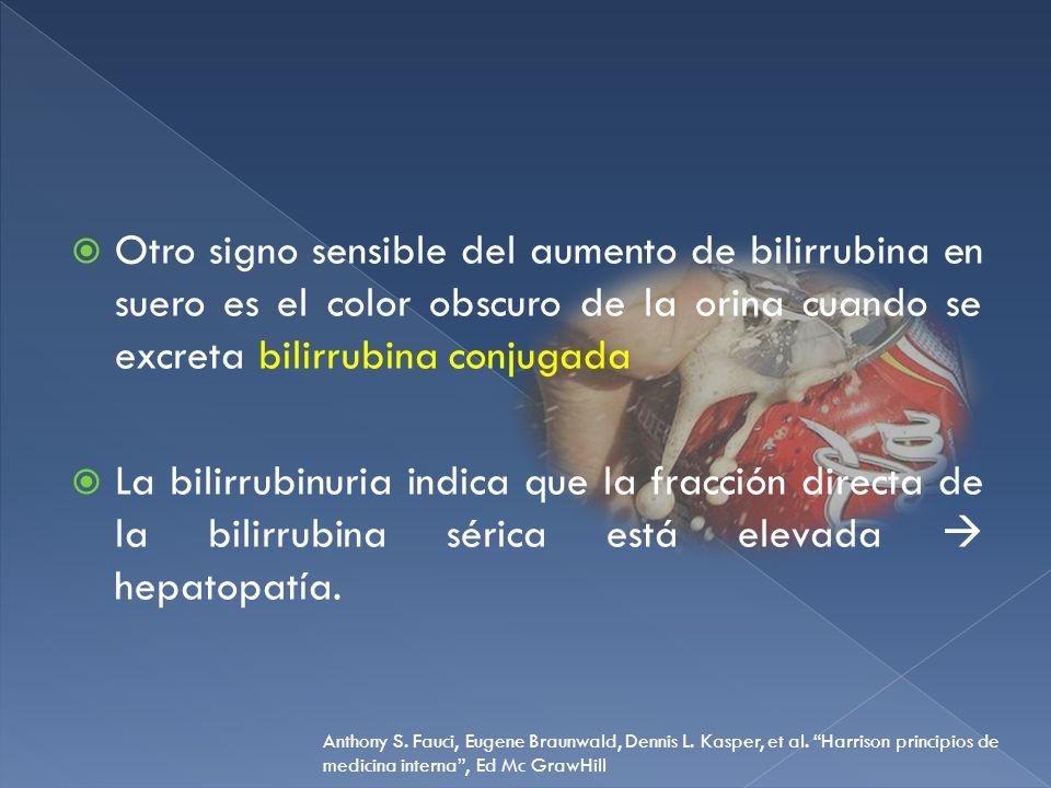 Otro signo sensible del aumento de bilirrubina en suero es el color obscuro de la orina cuando se excreta bilirrubina conjugada La bilirrubinuria indi