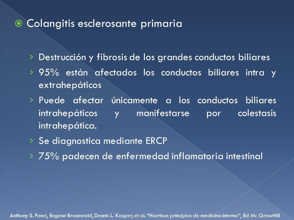 Colangitis esclerosante primaria Destrucción y fibrosis de los grandes conductos biliares 95% están afectados los conductos biliares intra y extrahepá