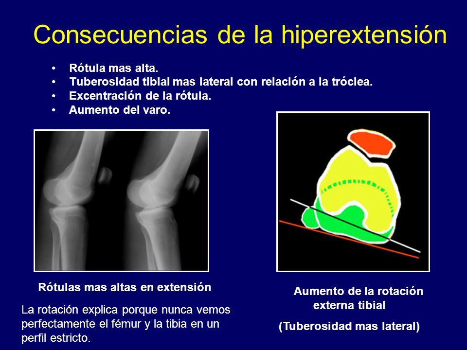 Consecuencias de la hiperextensión Rótula mas alta. Tuberosidad tibial mas lateral con relación a la tróclea. Excentración de la rótula. Aumento del v