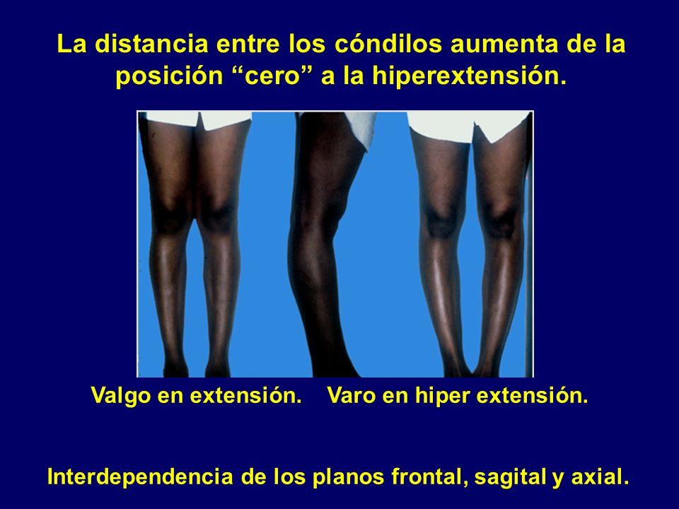 Valgo en extensión. Varo en hiper extensión. Interdependencia de los planos frontal, sagital y axial. La distancia entre los cóndilos aumenta de la po