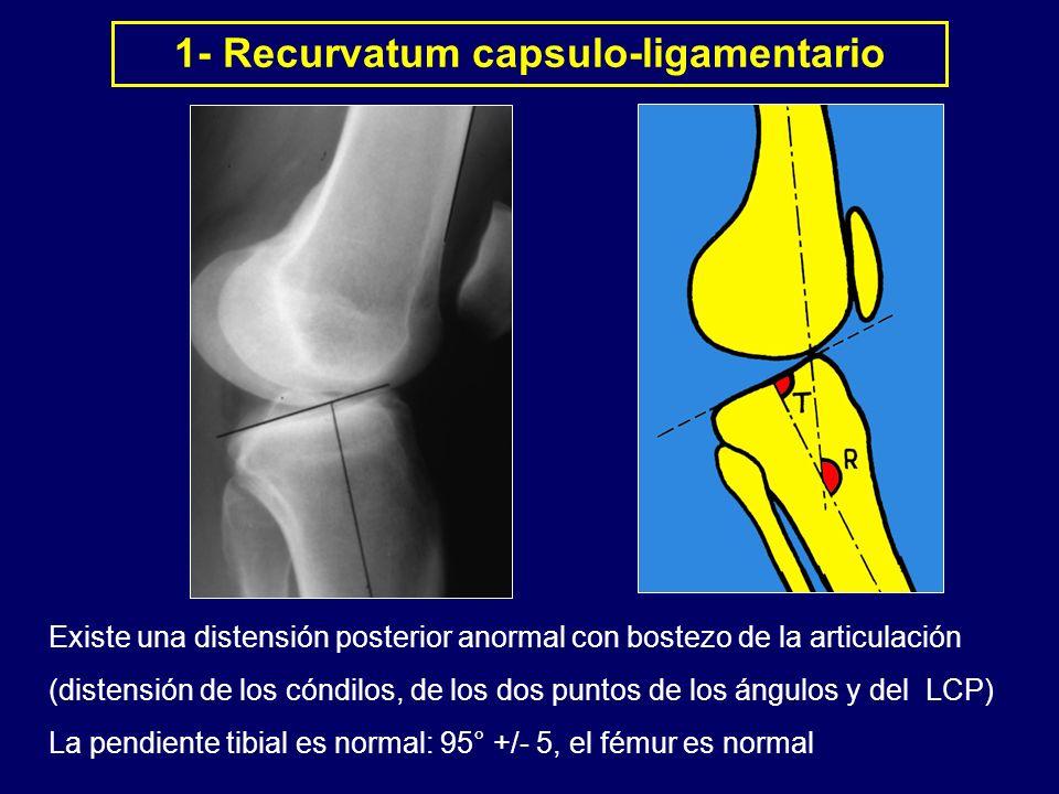 Existe una distensión posterior anormal con bostezo de la articulación (distensión de los cóndilos, de los dos puntos de los ángulos y del LCP) La pen