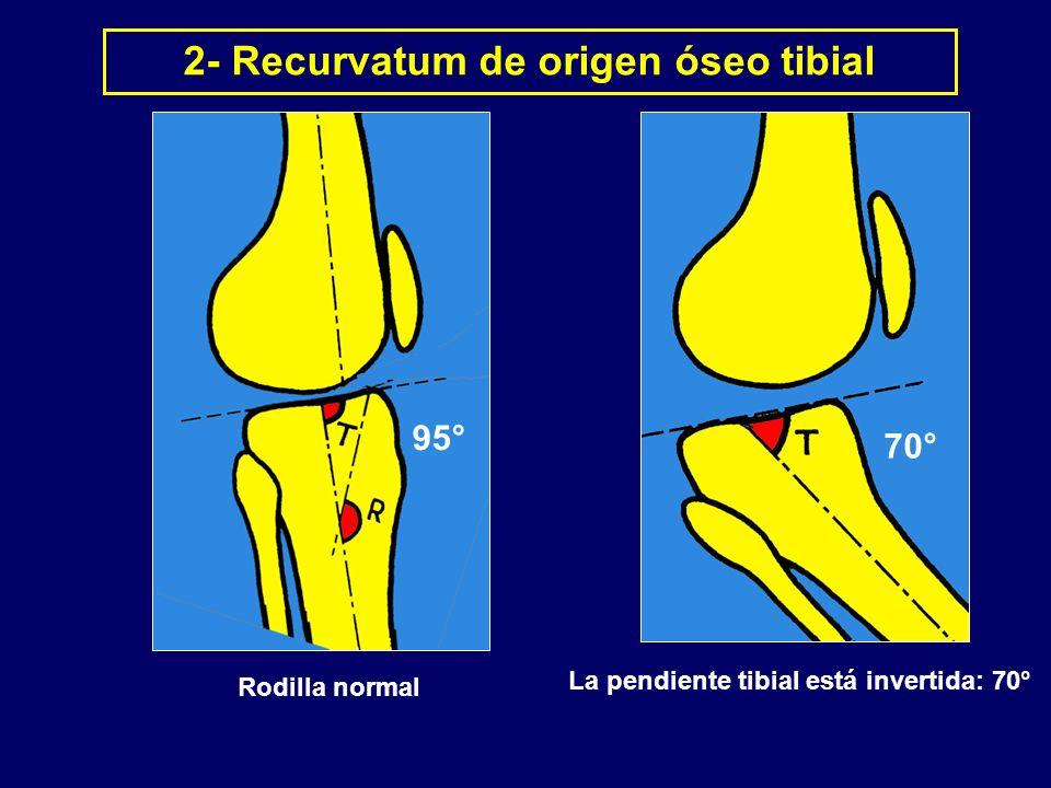 La pendiente tibial está invertida: 70° 2- Recurvatum de origen óseo tibial Rodilla normal 95° 70°