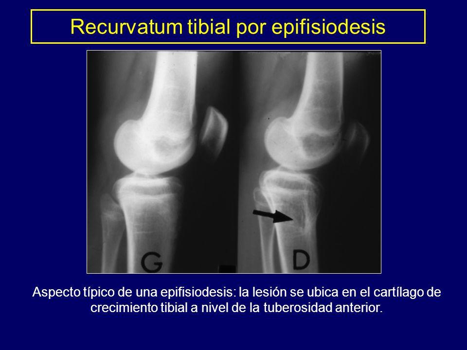 Aspecto típico de una epifisiodesis: la lesión se ubica en el cartílago de crecimiento tibial a nivel de la tuberosidad anterior. Recurvatum tibial po