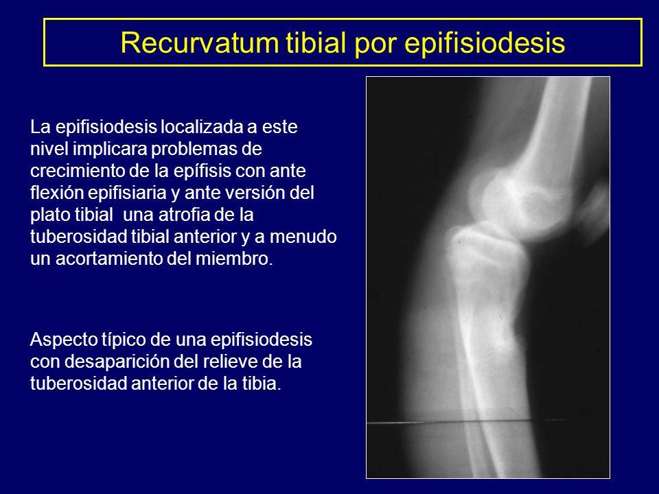 Aspecto típico de una epifisiodesis con desaparición del relieve de la tuberosidad anterior de la tibia. La epifisiodesis localizada a este nivel impl
