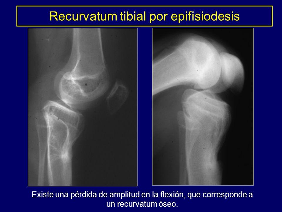 Existe una pérdida de amplitud en la flexión, que corresponde a un recurvatum óseo. Recurvatum tibial por epifisiodesis