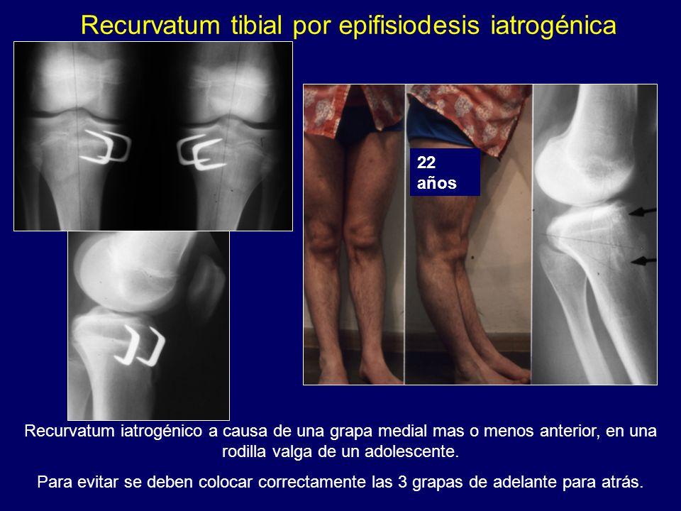 Recurvatum iatrogénico a causa de una grapa medial mas o menos anterior, en una rodilla valga de un adolescente. Para evitar se deben colocar correcta