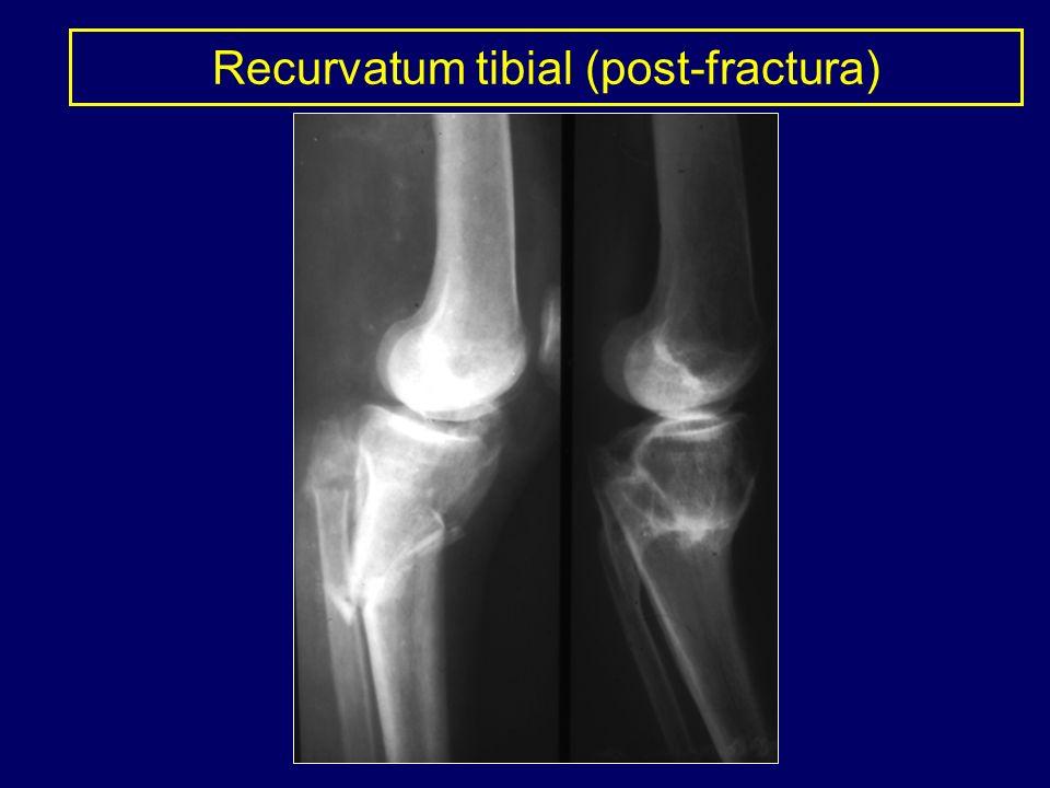 Recurvatum tibial (post-fractura)