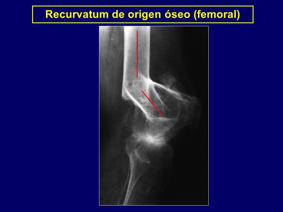 Recurvatum de origen óseo (femoral)