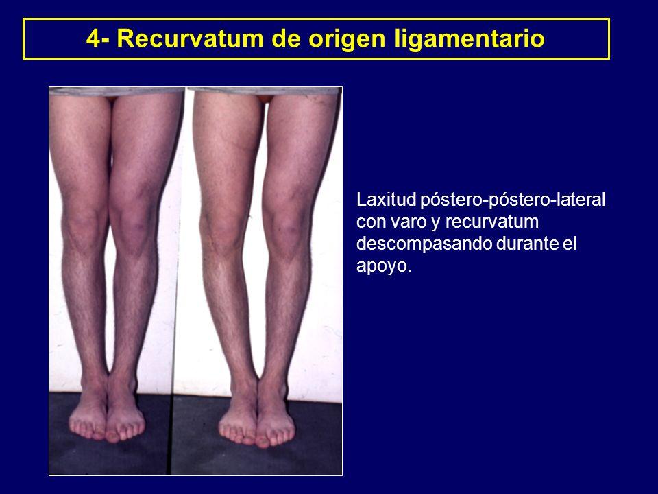 4- Recurvatum de origen ligamentario Laxitud póstero-póstero-lateral con varo y recurvatum descompasando durante el apoyo.