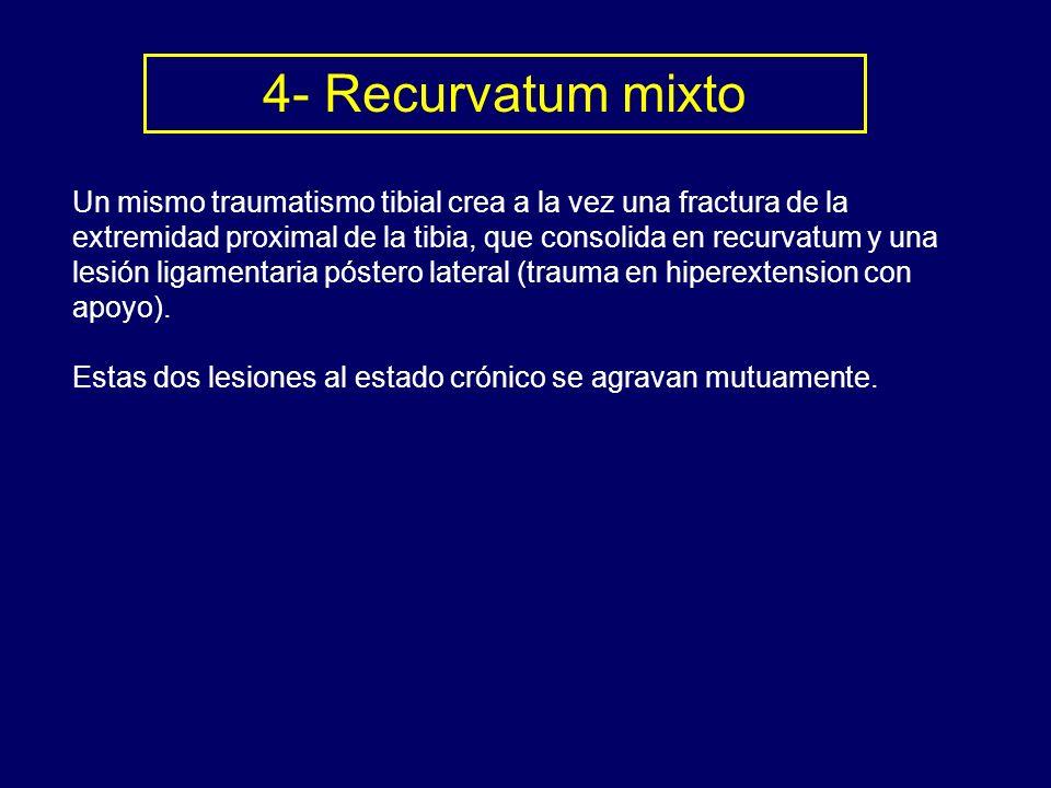 Un mismo traumatismo tibial crea a la vez una fractura de la extremidad proximal de la tibia, que consolida en recurvatum y una lesión ligamentaria pó
