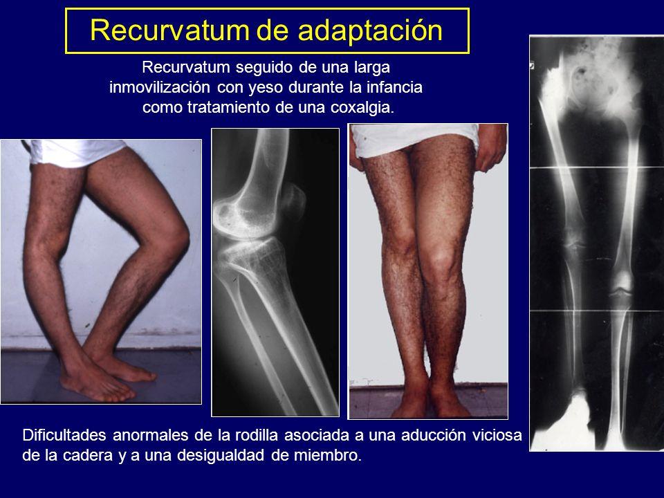 Recurvatum seguido de una larga inmovilización con yeso durante la infancia como tratamiento de una coxalgia. Dificultades anormales de la rodilla aso