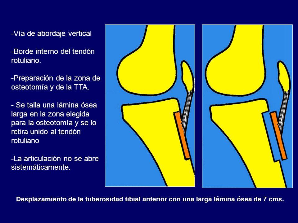 Desplazamiento de la tuberosidad tibial anterior con una larga lámina ósea de 7 cms. -Vía de abordaje vertical -Borde interno del tendón rotuliano. -P