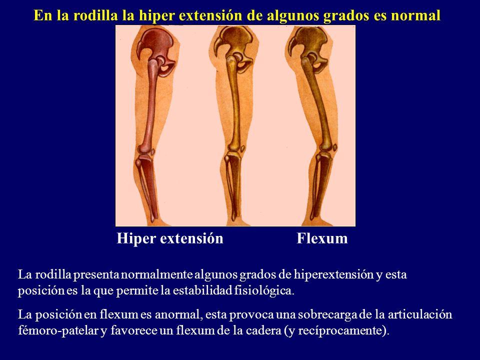 Hiper extensión Flexum La rodilla presenta normalmente algunos grados de hiperextensión y esta posición es la que permite la estabilidad fisiológica.