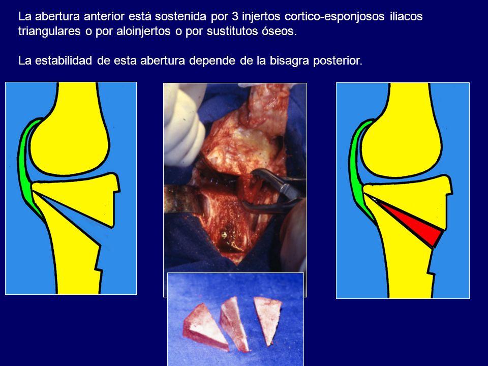 La abertura anterior está sostenida por 3 injertos cortico-esponjosos iliacos triangulares o por aloinjertos o por sustitutos óseos. La estabilidad de