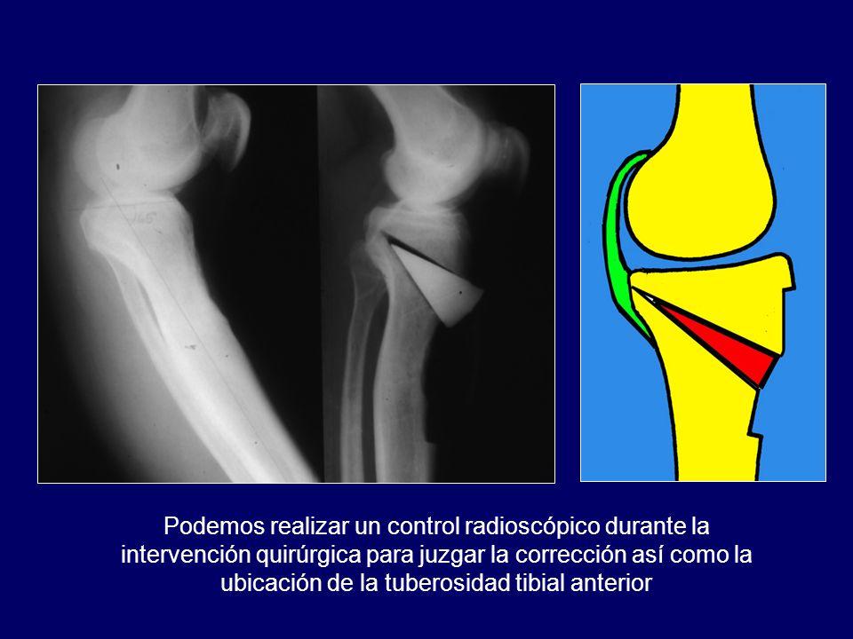 Podemos realizar un control radioscópico durante la intervención quirúrgica para juzgar la corrección así como la ubicación de la tuberosidad tibial a