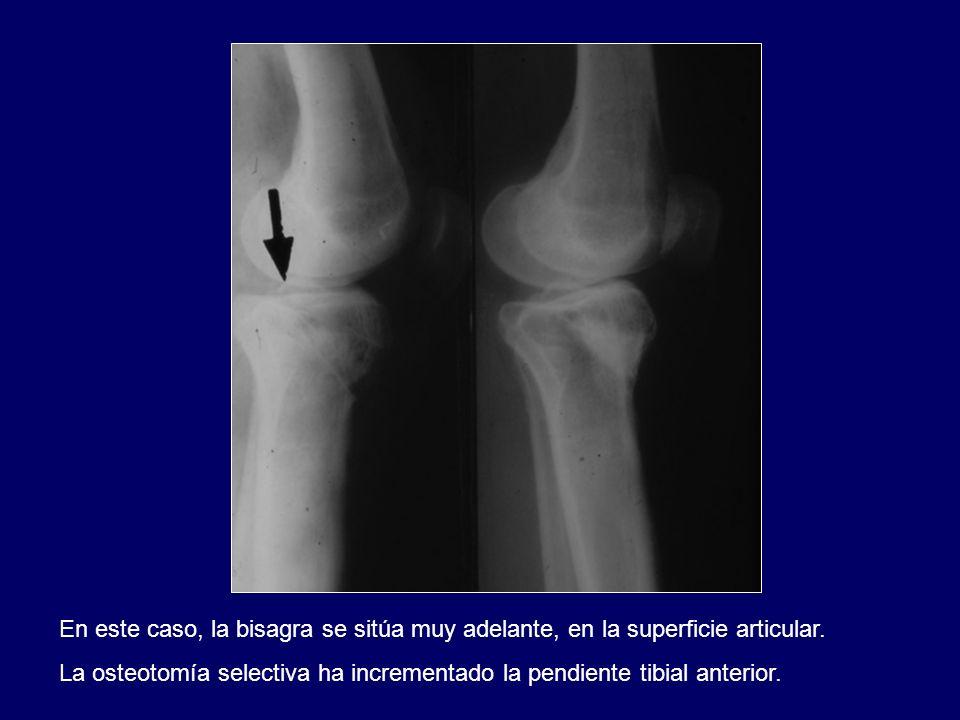 En este caso, la bisagra se sitúa muy adelante, en la superficie articular. La osteotomía selectiva ha incrementado la pendiente tibial anterior.