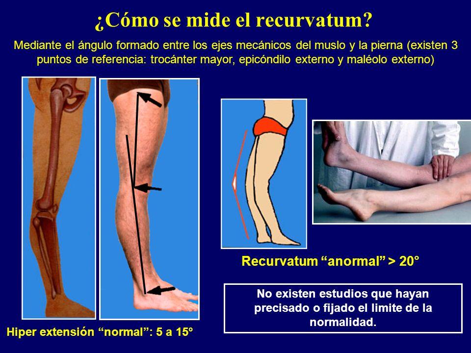 ¿Cómo se mide el recurvatum? Hiper extensión normal: 5 a 15° Recurvatum anormal > 20° Mediante el ángulo formado entre los ejes mecánicos del muslo y