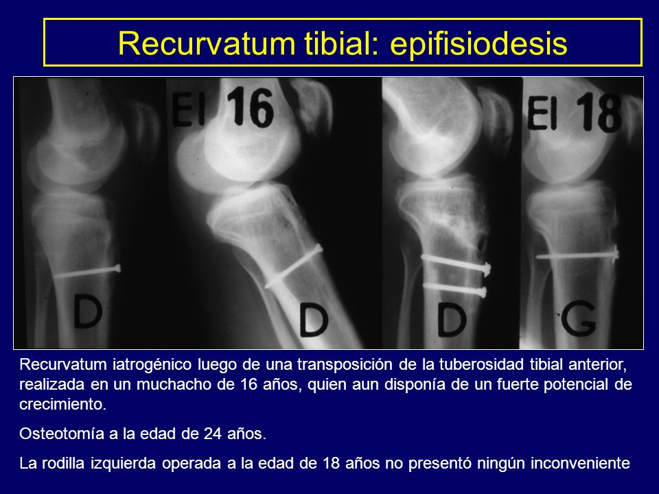 Recurvatum iatrogénico luego de una transposición de la tuberosidad tibial anterior, realizada en un muchacho de 16 años, quien aun disponía de un fue