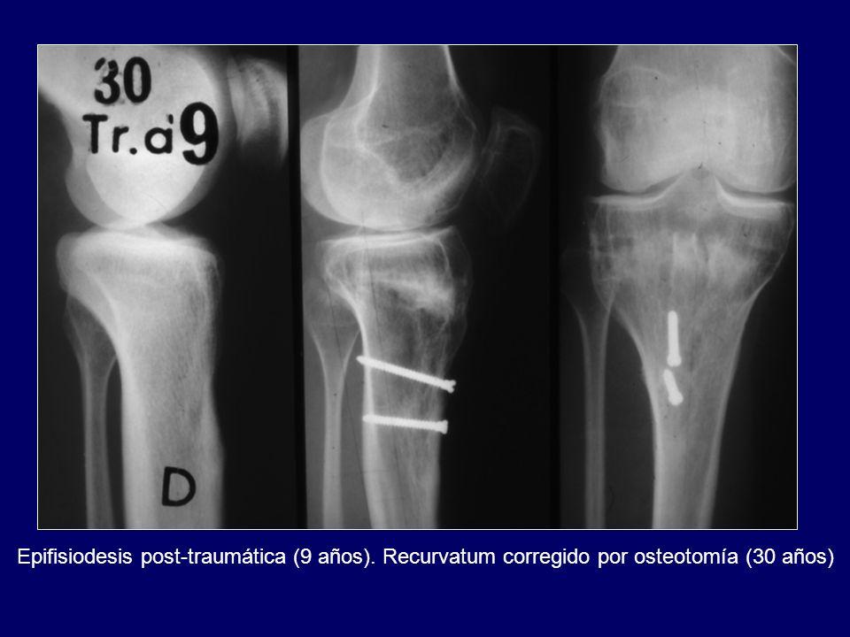 Epifisiodesis post-traumática (9 años). Recurvatum corregido por osteotomía (30 años)