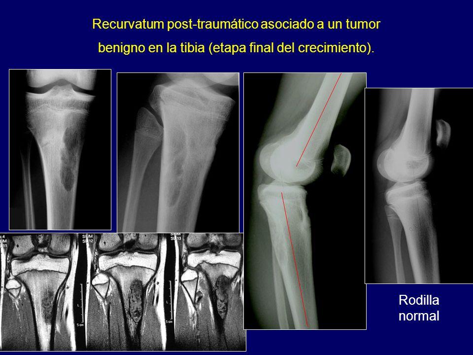 Recurvatum post-traumático asociado a un tumor benigno en la tibia (etapa final del crecimiento). Rodilla normal