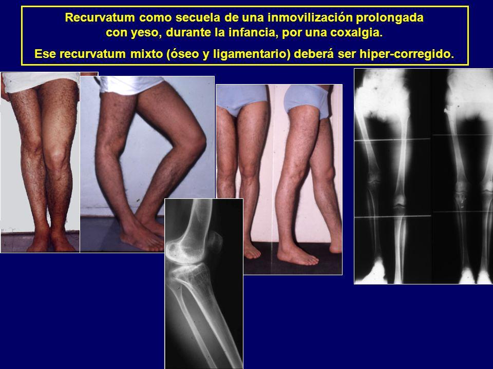 Recurvatum como secuela de una inmovilización prolongada con yeso, durante la infancia, por una coxalgia. Ese recurvatum mixto (óseo y ligamentario) d