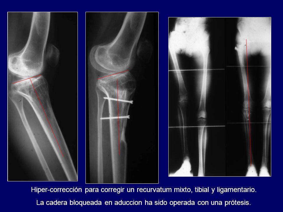 Hiper-corrección para corregir un recurvatum mixto, tibial y ligamentario. La cadera bloqueada en aduccion ha sido operada con una prótesis.