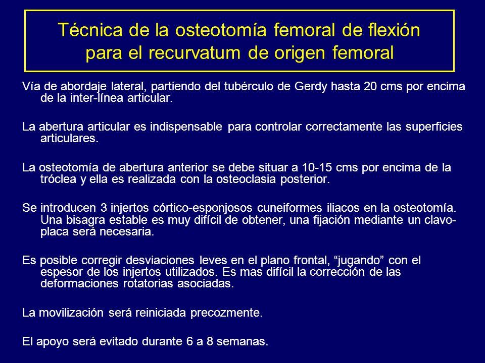 Técnica de la osteotomía femoral de flexión para el recurvatum de origen femoral Vía de abordaje lateral, partiendo del tubérculo de Gerdy hasta 20 cm