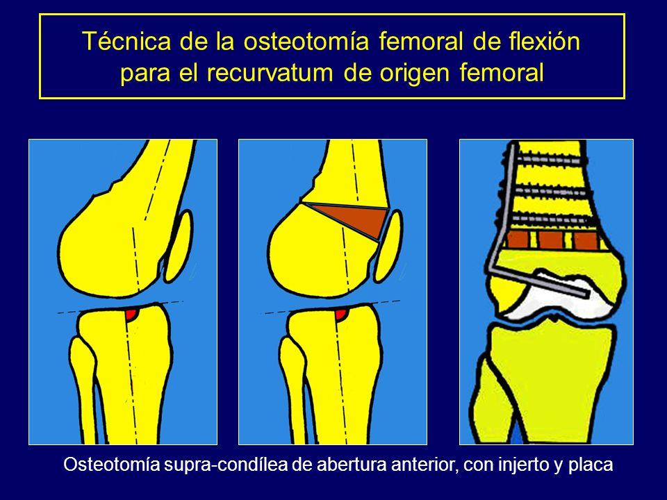 Técnica de la osteotomía femoral de flexión para el recurvatum de origen femoral Osteotomía supra-condílea de abertura anterior, con injerto y placa