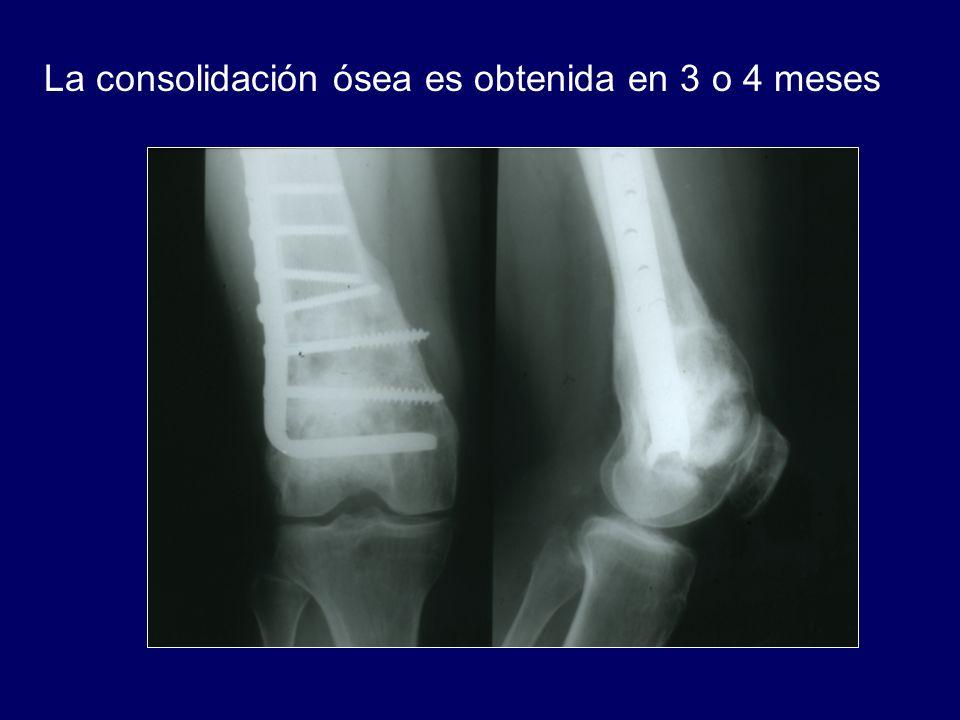 La consolidación ósea es obtenida en 3 o 4 meses