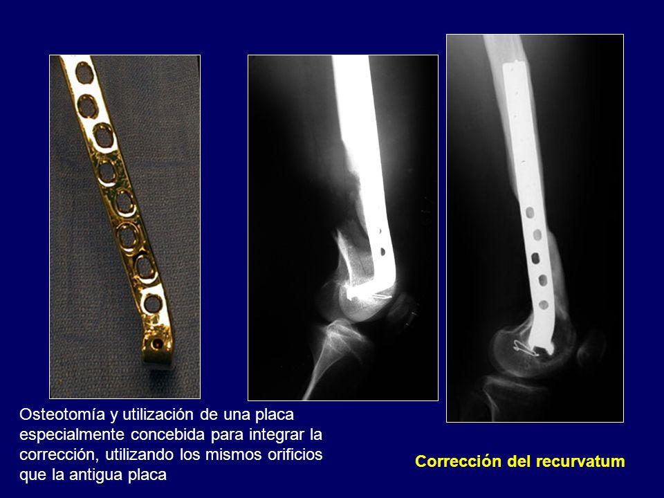Corrección del recurvatum Osteotomía y utilización de una placa especialmente concebida para integrar la corrección, utilizando los mismos orificios q