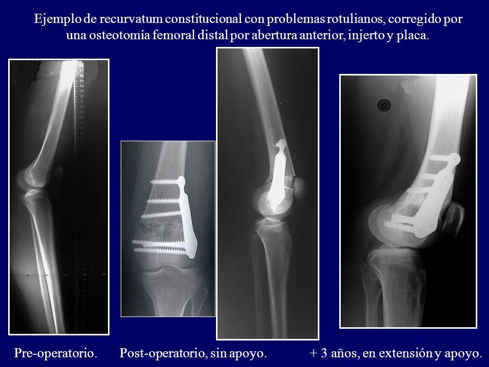Ejemplo de recurvatum constitucional con problemas rotulianos, corregido por una osteotomía femoral distal por abertura anterior, injerto y placa. Pre