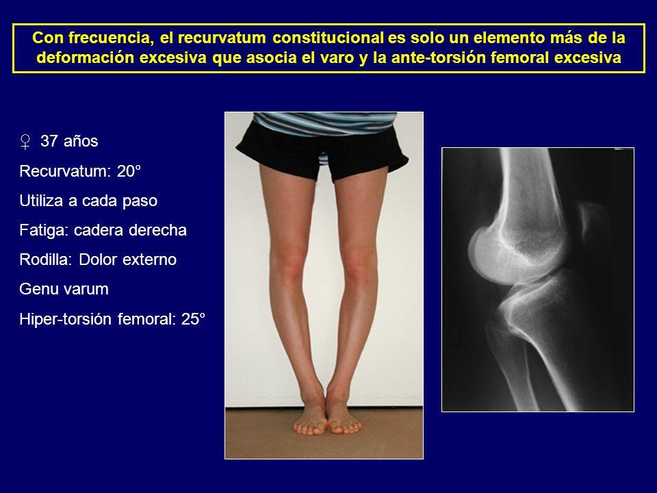 37 años Recurvatum: 20° Utiliza a cada paso Fatiga: cadera derecha Rodilla: Dolor externo Genu varum Hiper-torsión femoral: 25° Con frecuencia, el rec