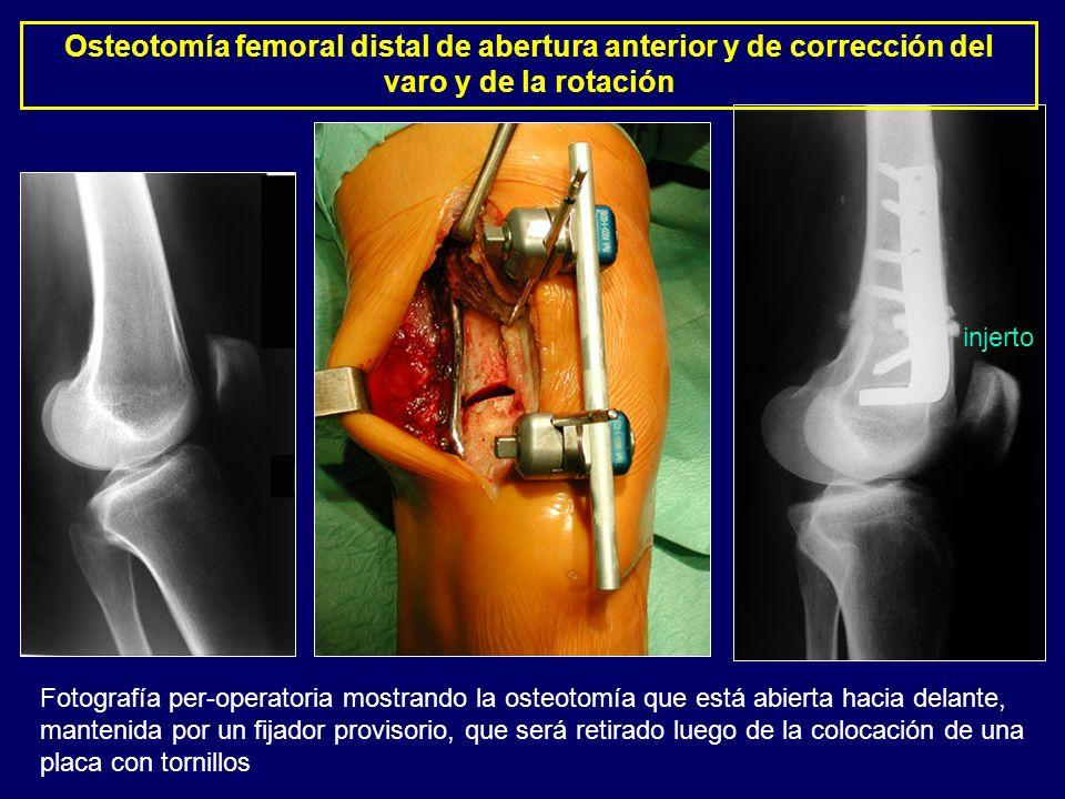 Osteotomía femoral distal de abertura anterior y de corrección del varo y de la rotación Fotografía per-operatoria mostrando la osteotomía que está ab