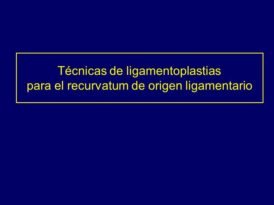 Técnicas de ligamentoplastias para el recurvatum de origen ligamentario